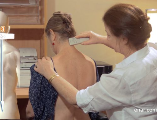 Mandy's ENAR Therapy shoulder results